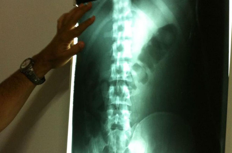 Radiografía que muestra la droga en cápsulas dentro del cuerpo de una mula.