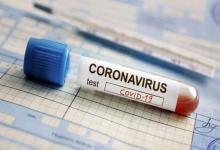 En la provincia se registraron hoy 706 casos de Covid-19 y el total acumulado asciende a 34.930 personas confirmadas con esa enfermedad.