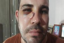 joven denuncia golpiza policial