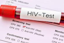 vacuna HIV